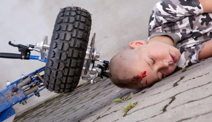 Falls Are a Leading Cause of Head Trauma in Children