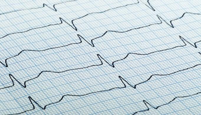 Many Patients Unaware of Stroke, Bleeding Risk in Atrial Fibrillation