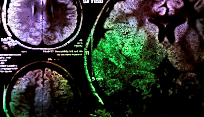 TNK-tPA Effective, Possibly Better than Alteplase for Minor Stroke