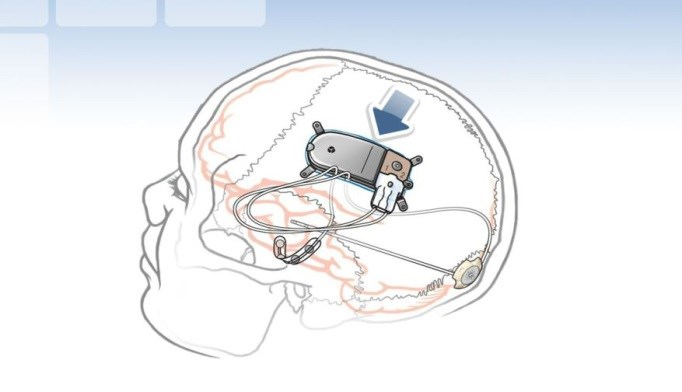 Direct Neurostimulation Reduces Focal Seizure Frequency Over Time