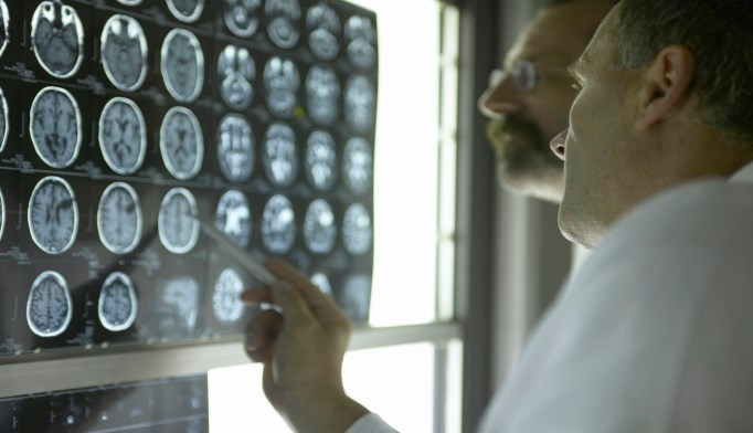 Causes, Treatment of Cryptogenic Stroke Still Uncertain, Survey Finds