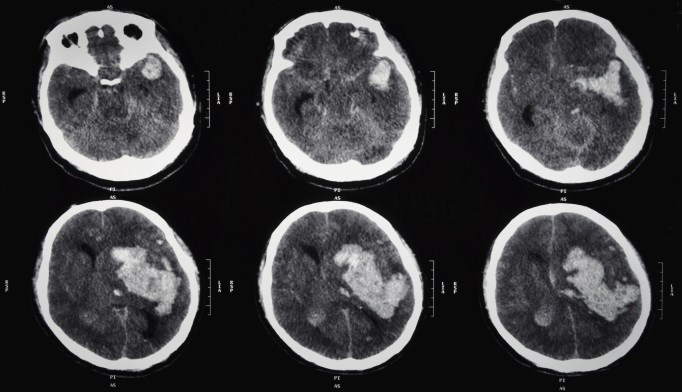 While many lesions remained at 1 year, reductions in lesion volume correlated with improved neurologic outcomes.