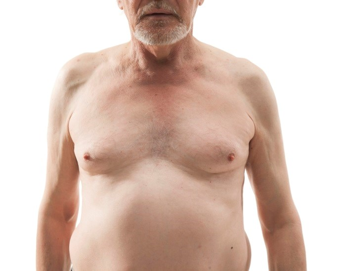 Alzheimer's Onset May Be Linked to Midlife BMI