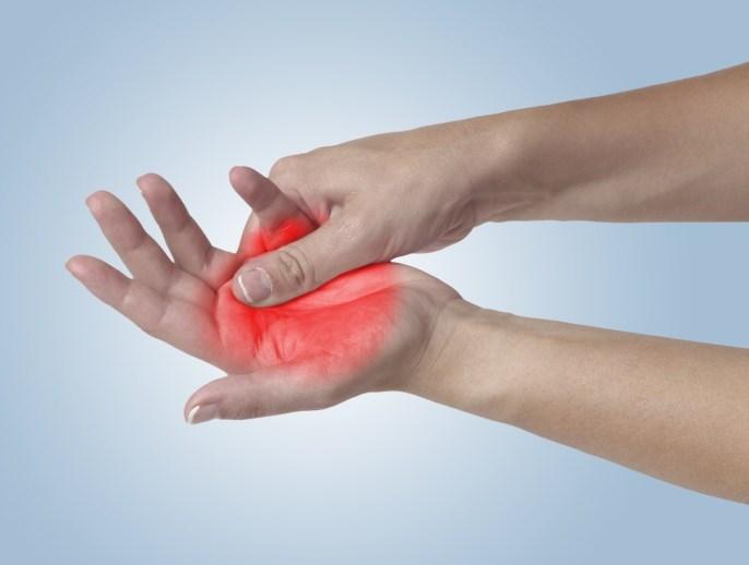 Neuropathic Pain Often a Factor in Rheumatoid Arthritis
