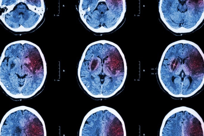Patients with lesions in the left basal ganglia were more likely to have post-stroke epilepsy.