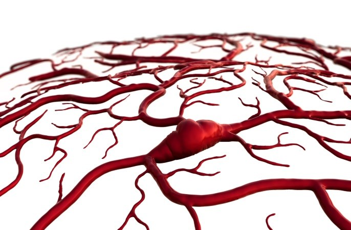 Increased Stroke Risk Following Percutaneous Coronary Intervention