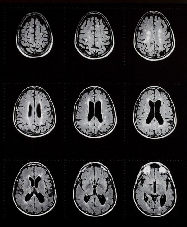 Ocrelizumab Reduces Disease Activity in Primary Progressive MS