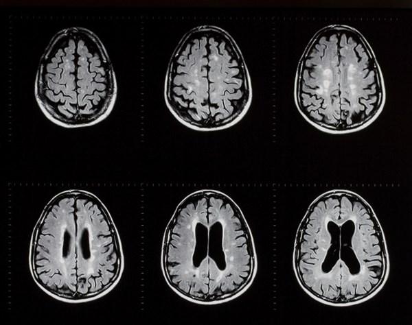 Siponimod Effective in Reducing Disease Activity in Relapsing MS