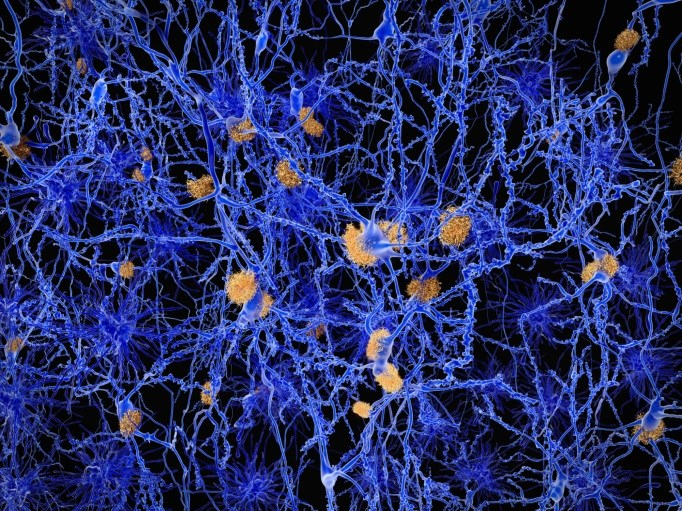 Axonal Injury After Traumatic Brain Injury May Contribute to Amyloid Buildup