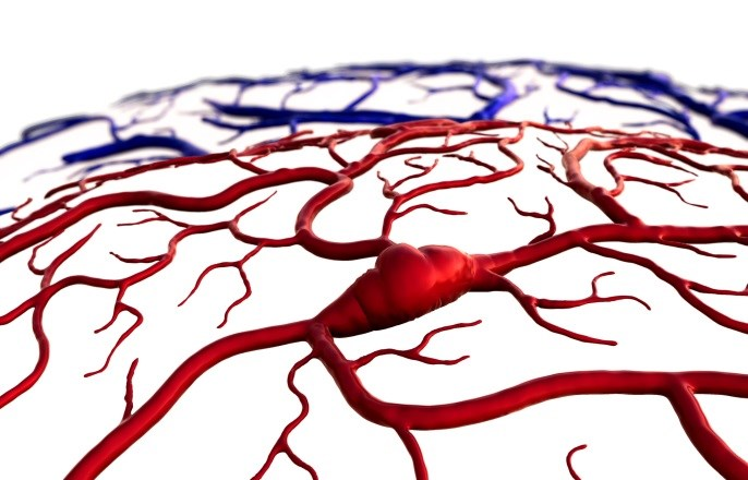Obesity, Oral Contraceptives Increase Risk of Cerebral Venous Thrombosis