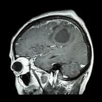 mild cognitive impairment treatment guidelines