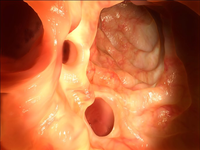 Is Colonic Diverticular Disease Associated With Increased Risk of Dementia?