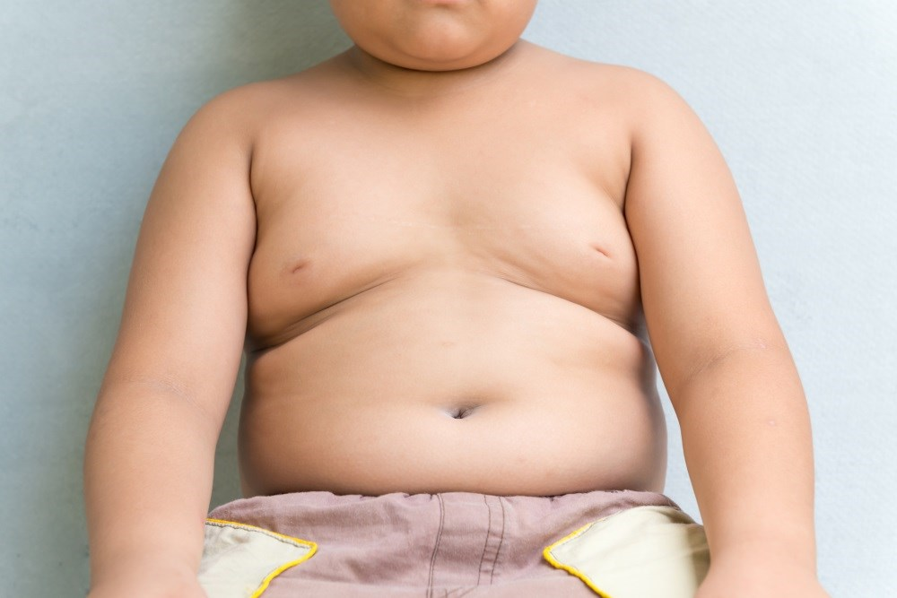 Theassociation could justify early personalized treatment plans for individuals with a higher childhood BMI.