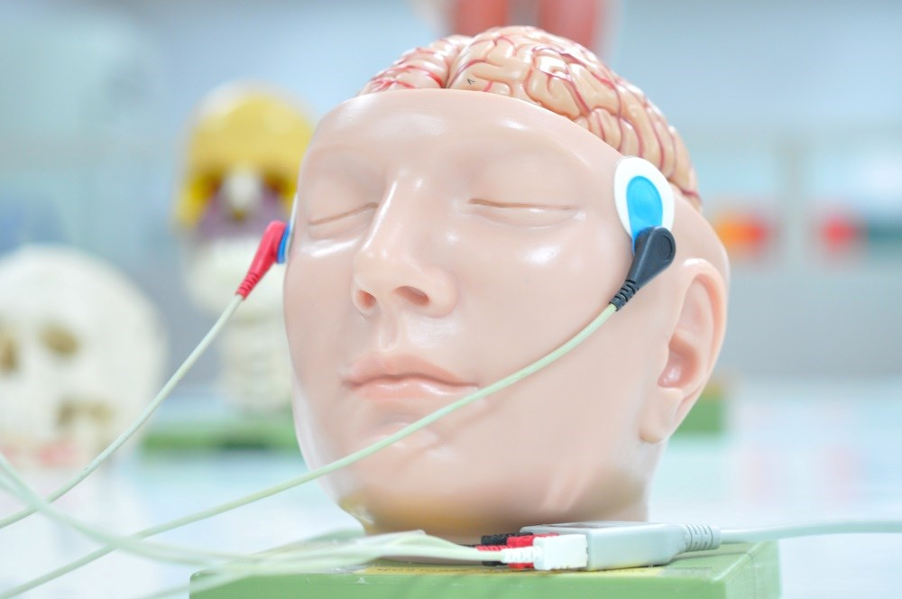Patients receiving tDCS experienced more side effects.