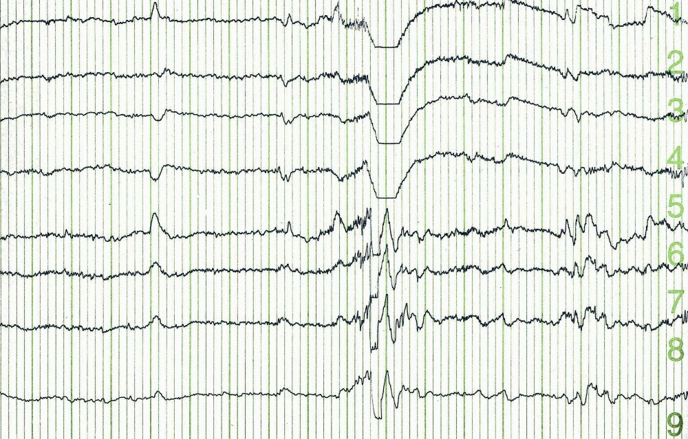 Abnormal VEEG Is a Risk Factor for Recurrence After First Unprovoked Seizure