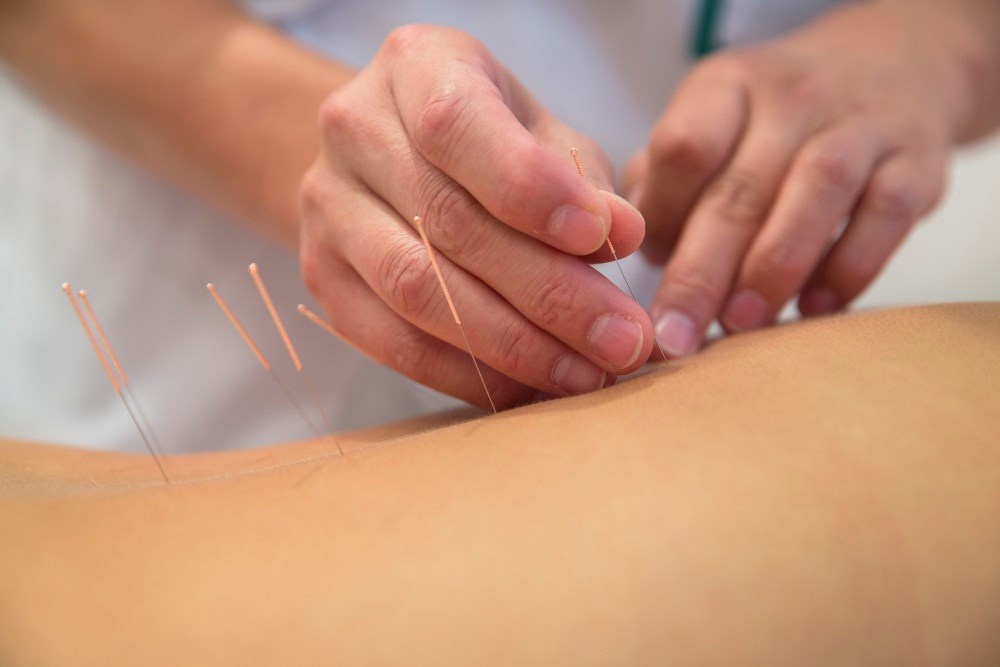 Acupuncture for Treatment of Chronic Pain Conditions