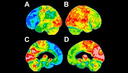 When It's Not Alzheimer's: The Differential Diagnosis of Frontotemporal Lobar Degeneration