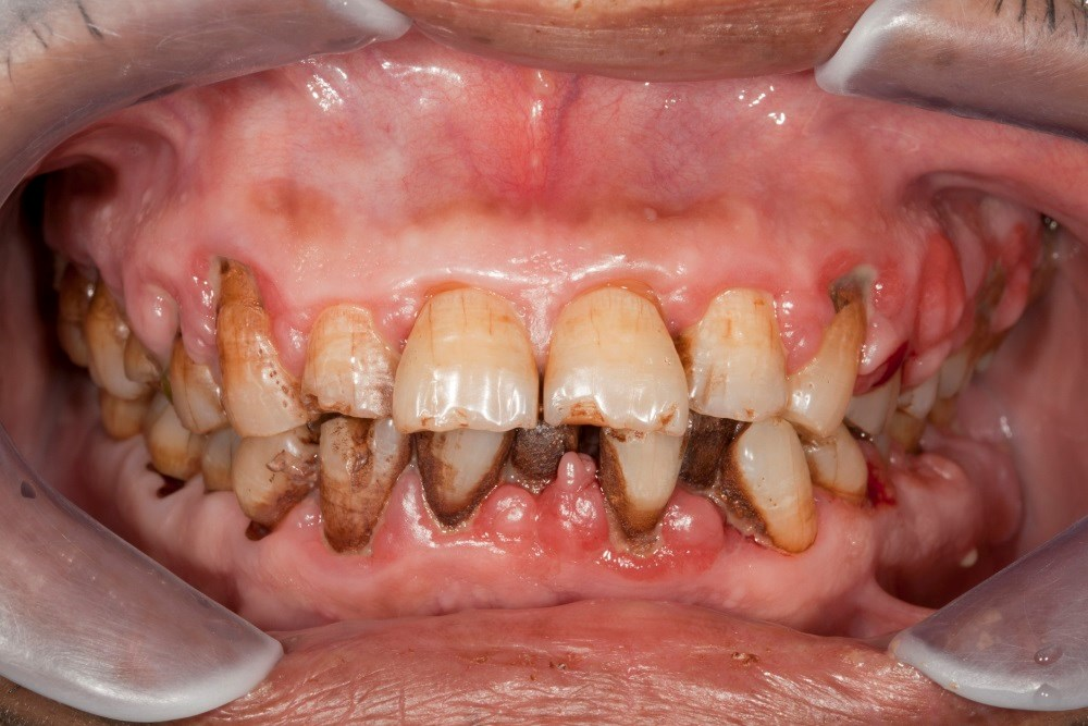 Periodontitis Linked to Increased Dementia Risk