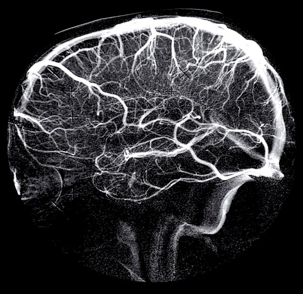 Biomarker Identified for Cerebral Small Vessel Disease Burden, Progression