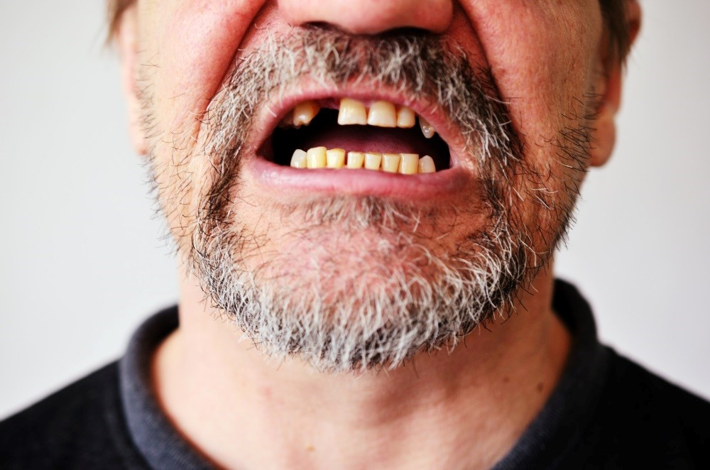 Experimental Alzheimer's Drug May Help Repair Teeth