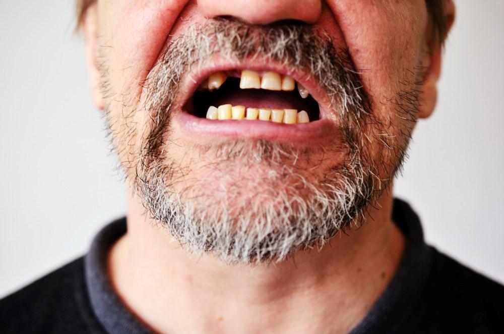 Experimental Alzheimer's Drug May Help Repair Teeth