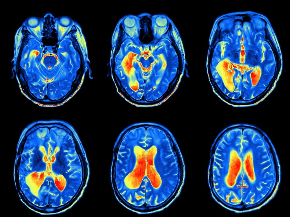 The study results suggest that patients with non-NPSLE have impaired memory function indicative of working memory-related neural dysfunction.