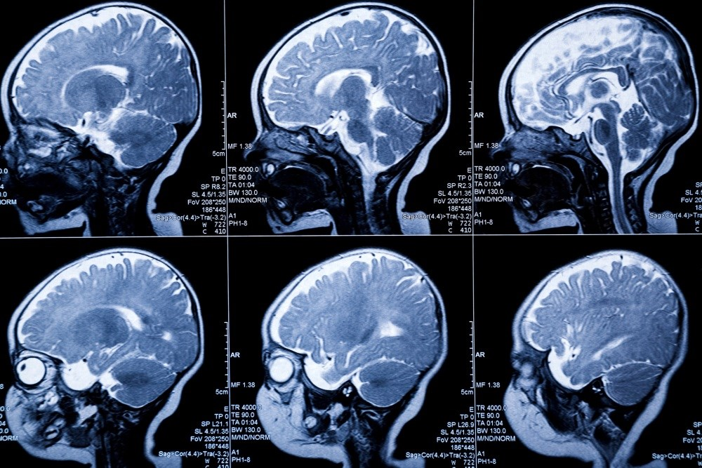 MRI May Help Detect White Matter Injury in Neonates