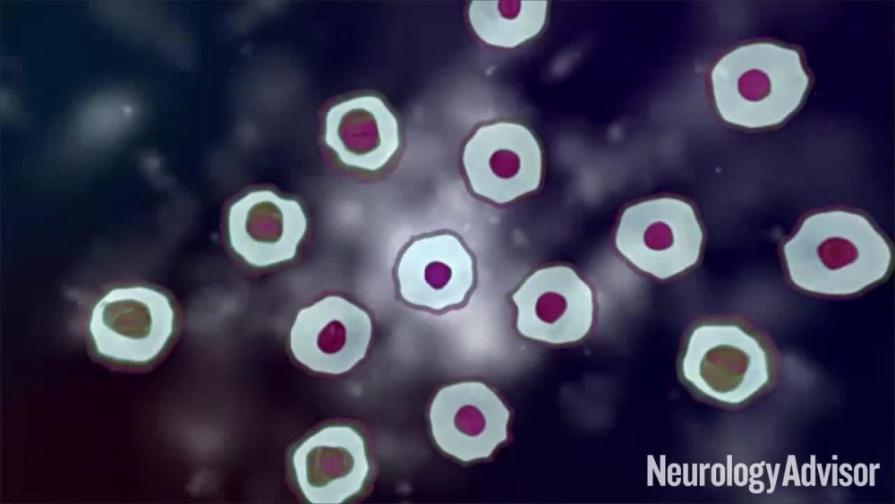 VIDEO: Dysfunctional Mitochondrial DNA May Play a Role in Parkinson's Disease