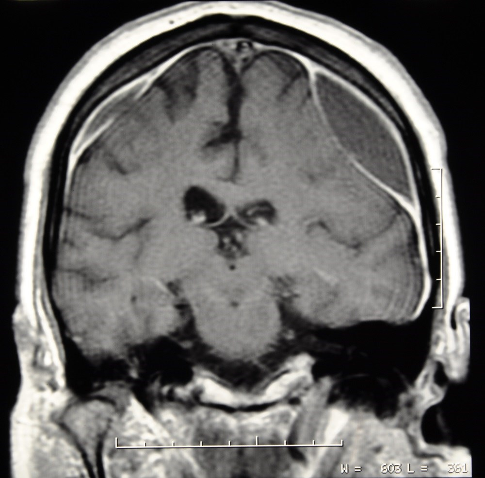 The highest odds of subdural hematoma were found for the combined use of vitamin K antagonists and antiplatelet drugs.