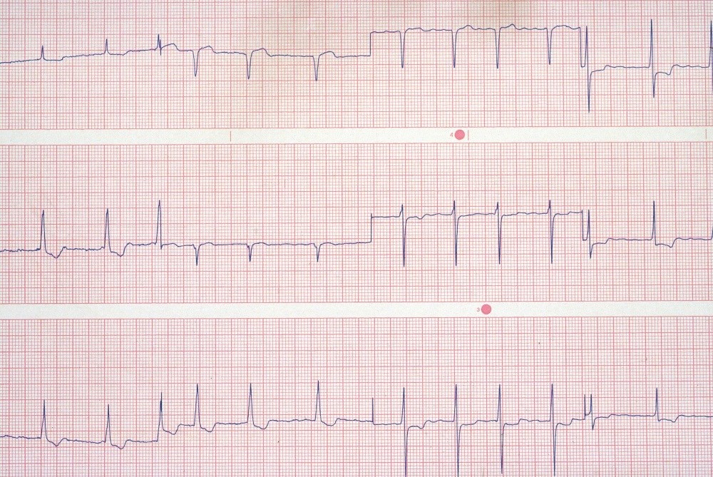 Atrial Fibrillation Associated With Cognitive Decline
