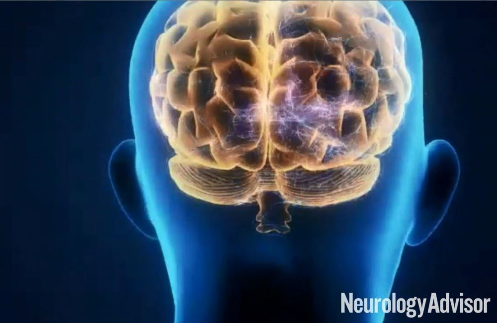 With Costs Rising, A Call for More Neurology Funding