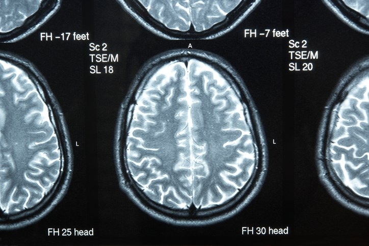In Traumatic Brain Injury, White Matter Diffusivity May Predict Long Term Outcomes