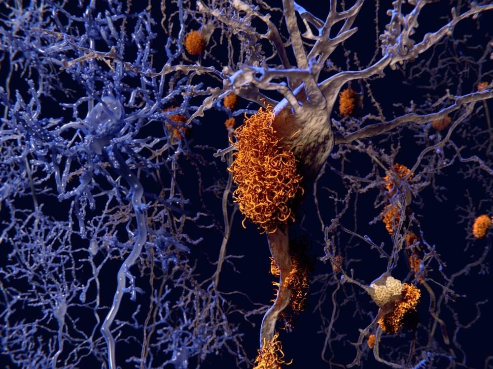 Increased Amyloid Burden With Obstructive Sleep Apnea