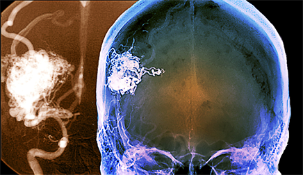 Headache and Arteriovenous Malformations: Strategies for Identification, Treatment