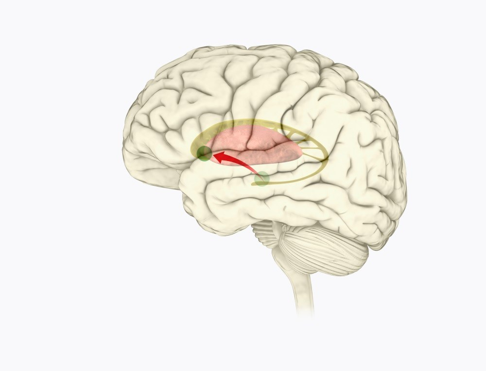 Migraine Attacks Associated With Reduced Dopamine Levels