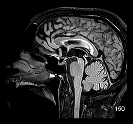 New Clinical Guidelines: Distinguishing Variations of Progressive Supranuclear Palsy