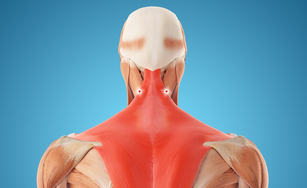 Previous research has shown a more rapid response to intramuscular injections of a long-acting anesthetic into the lower cervical neck.