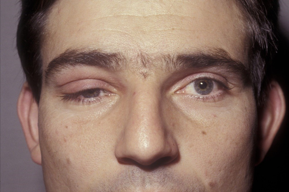 Reducing eyelid droop may help relieve pain associated with tension-type headaches.
