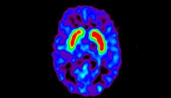 Erectile Dysfunction May Predict Development of Parkinson's Disease