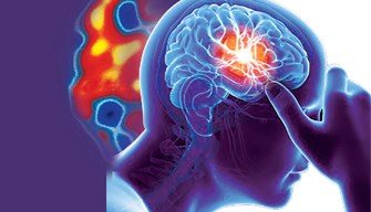 Mechanisms related to migraine-associated ischemic stroke may not be linked with cerebral vascular risk factors.