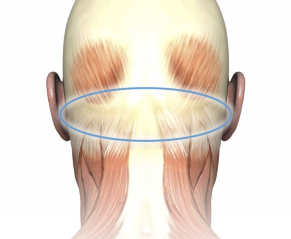 Surgical deactivation of trigger sites can reduce occipital-triggered migraines.