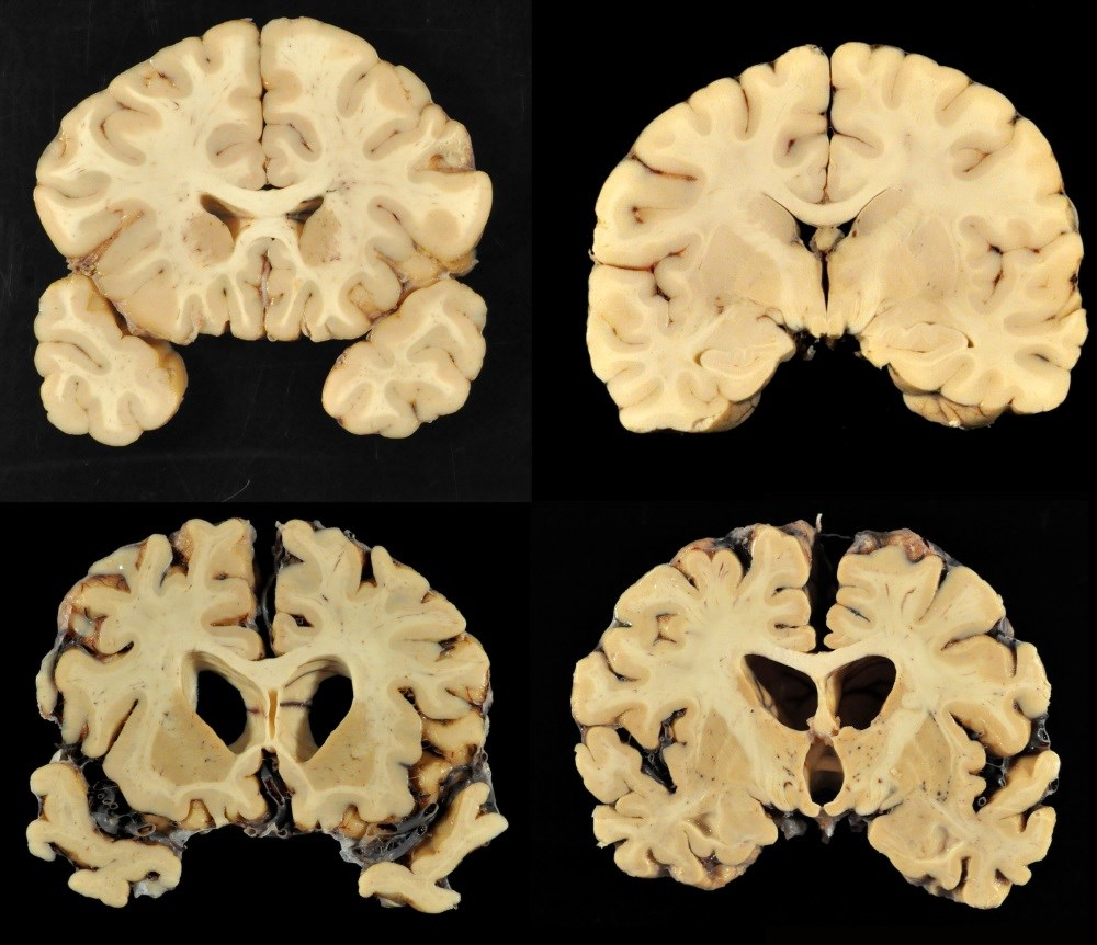 Chronic traumatic encephalopathy can only be diagnosed postmortem. Image courtesy Boston University School of Medicine.
