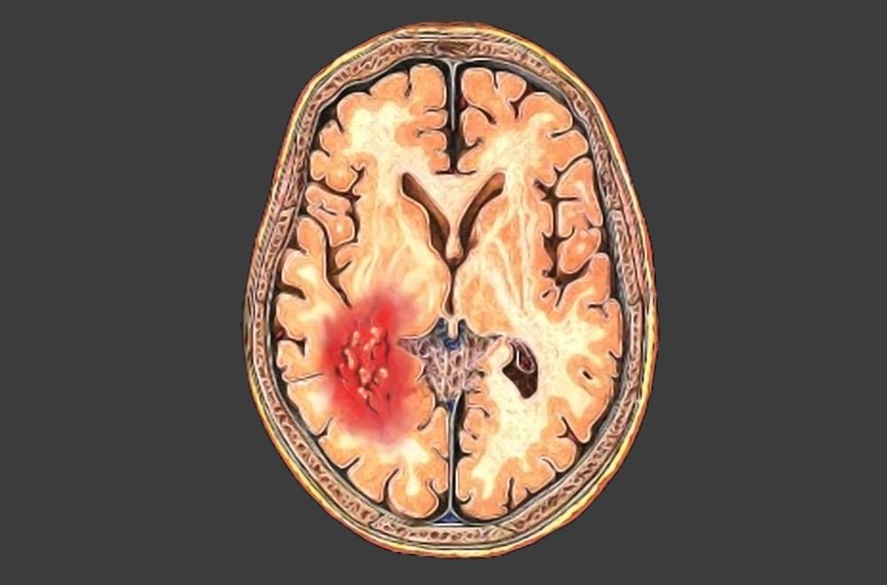 Minimum Headache Duration Prompting Subarachnoid Hemorrhage Workup