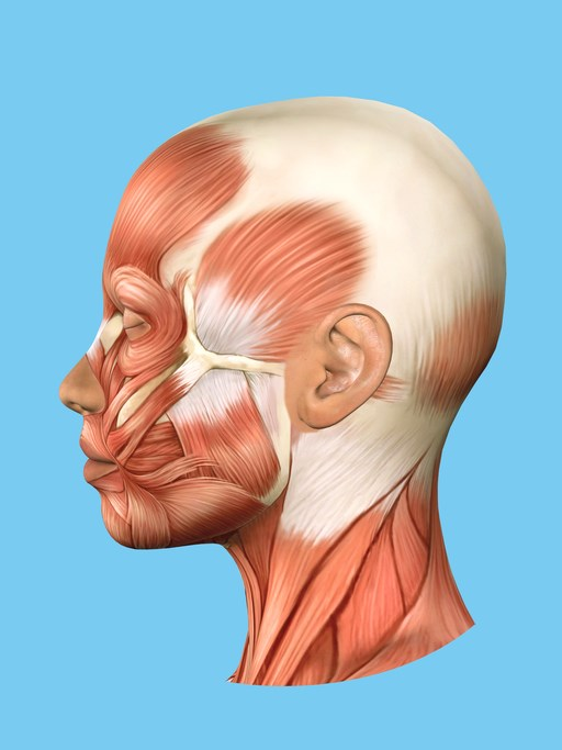 Myofacial trigger points may play a significant role in chronic migraine.