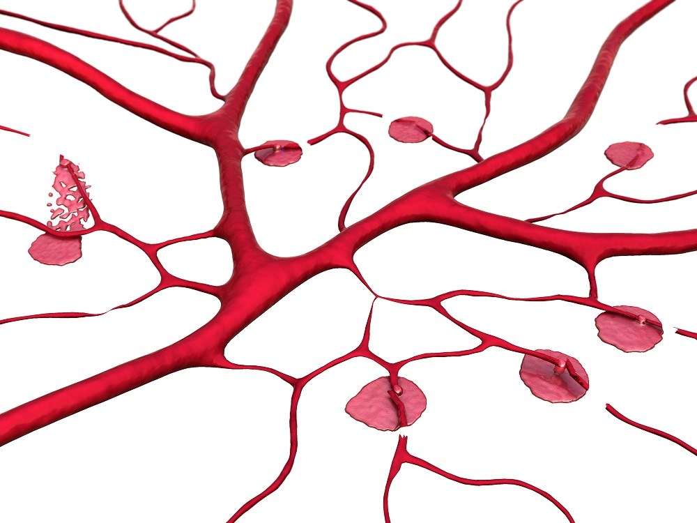 Cerebral Small Vessel Disease Linked to HTRA1 Mutation