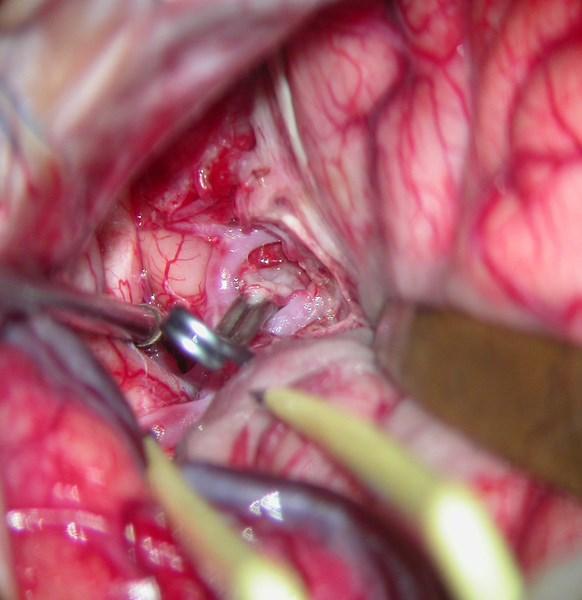 Awake Neurologic Testing During Aneurysm Repair Decreases Ischemic Injury Risk