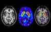 MRI in Parkinson's Disease: Expanding Usability for Better Diagnostics