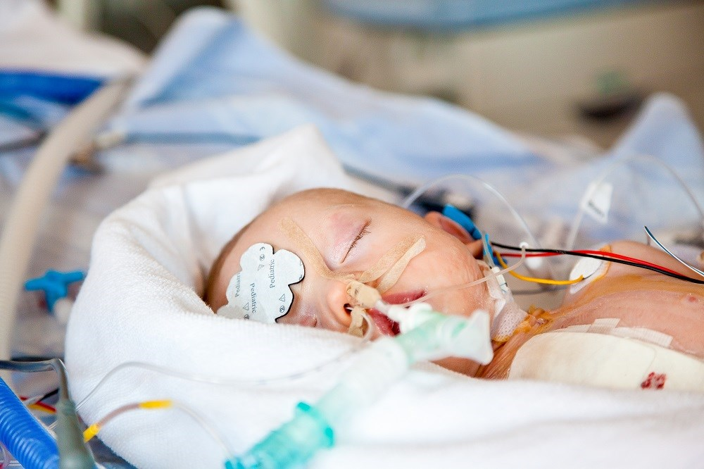 White Matter Volume in Infants May be Affected by General Anesthesia