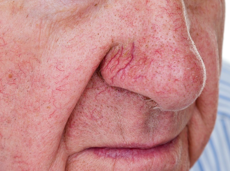 Increased Parkinson's Risk Associated With Poor Sense of Smell
