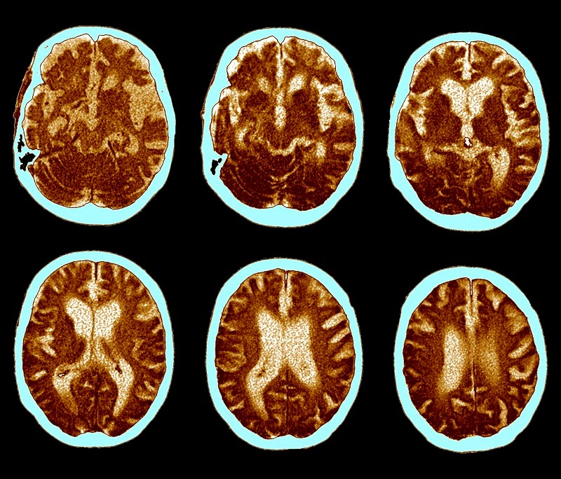 No association was found between risk for Alzheimer disease and treatment with ADT.